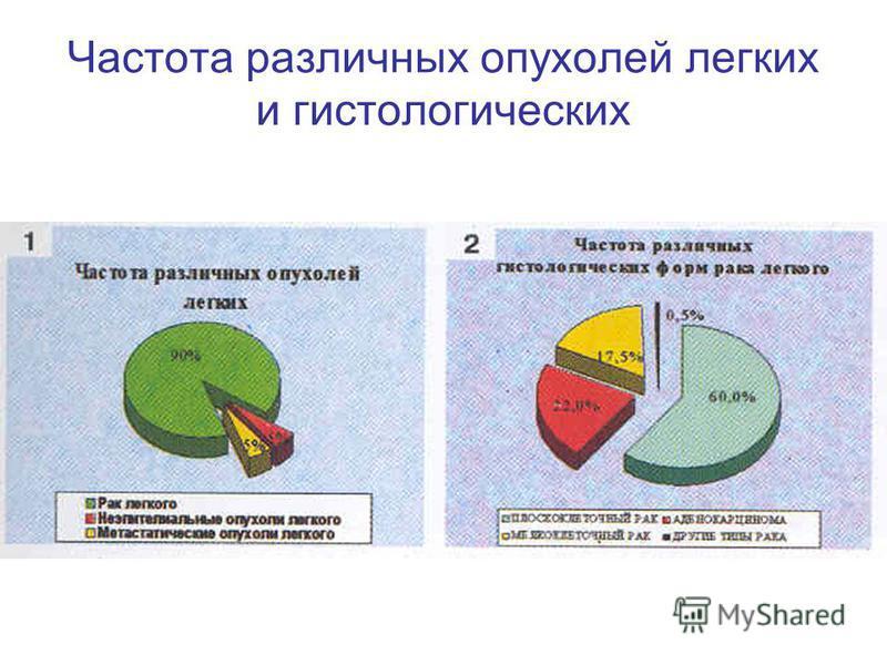 Частота различных опухолей легких и гистологических