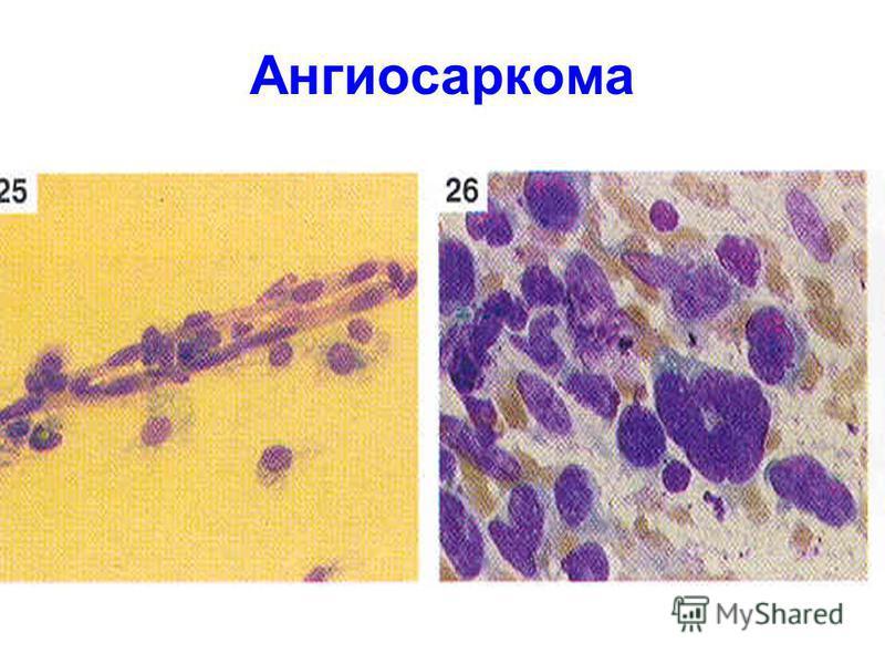 Ангиосаркома