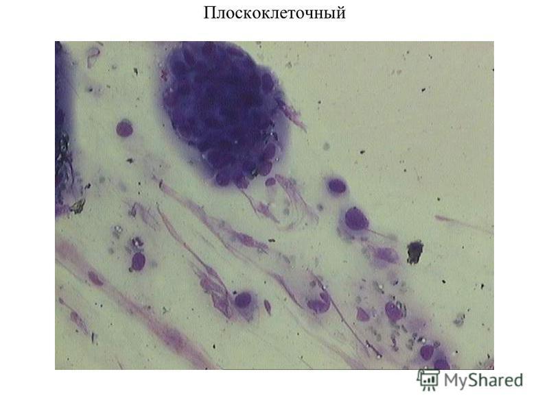 Плоскоклеточный