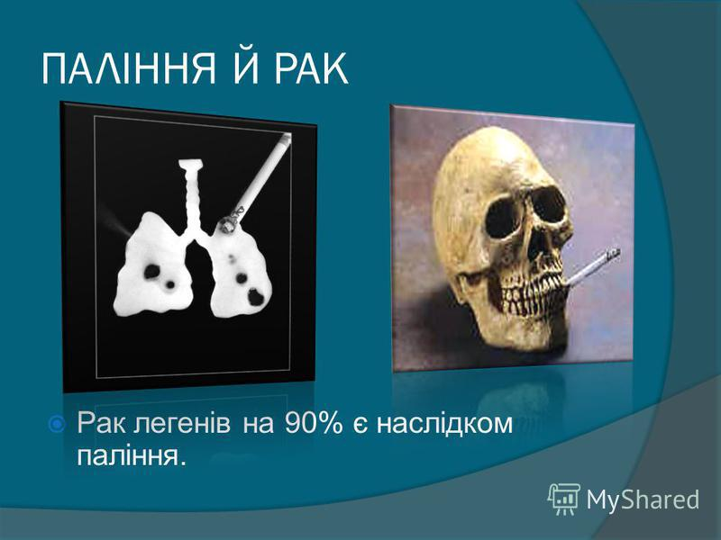 ПАЛІННЯ Й РАК Рак легенів на 90% є наслідком паління.