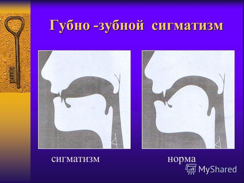 Губно -зубной сигматизм сигматизм норма