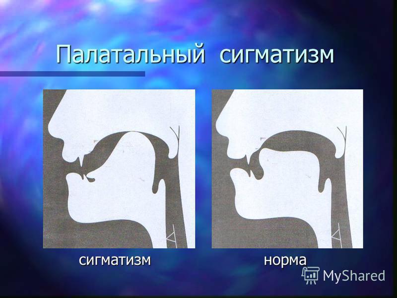 Постановка звука [Ш] от звука [Р] Полякова М. А.: «Улыбаясь так, чтобы верхние и нижние резцы были открыты, ребенок длительно [Р] произносит звук [Р] шепотом, совсем тихо, так чтобы язык во рту прекратил вибрировать. [Ш]» Предложите ребенку округлить