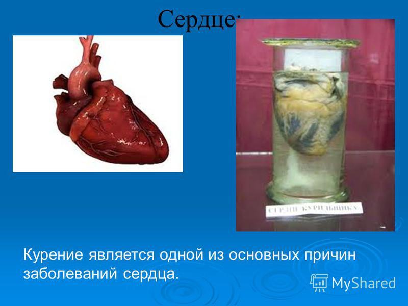 Сердце: Курение является одной из основных причин заболеваний сердца.