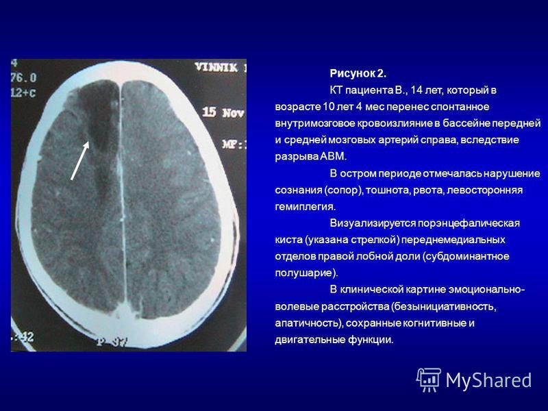 Рисунок 2. КТ пациента В., 14 лет, который в возрасте 10 лет 4 мес перенес спонтанное внутримозговое кровоизлияние в бассейне передней и средней мозговых артерий справа, вследствие разрыва АВМ. В остром периоде отмечалась нарушение сознания (сопор),
