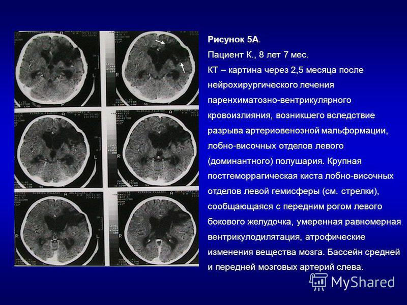 Рисунок 5А. Пациент К., 8 лет 7 мес. КТ – картина через 2,5 месяца после нейрохирургического лечения паренхиматозной-вентрикулярного кровоизлияния, возникшего вследствие разрыва артериовенозной мальформации, лобно-височных отделов левого (доминантног
