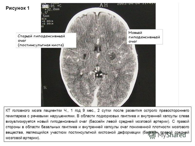Рисунок 1 КТ головного мозга пациентки Ч., 1 год 9 мес., 2 сутки после развития острого правостороннего гемипареза с речевыми нарушениями. В области подкорковых ганглиев и внутренней капсулы слева визуализируется новый гиподенсивный очаг (бассейн лев