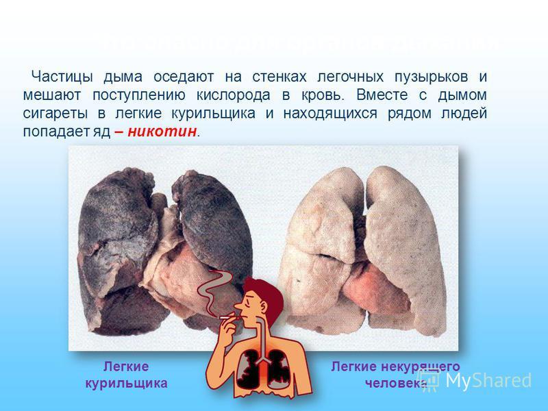 Что опасно для органов дыхания Частицы дыма оседают на стенках легочных пузырьков и мешают поступлению кислорода в кровь. Вместе с дымом сигареты в легкие курильщика и находящихся рядом людей попадает яд – никотин. Легкие курильщика Легкие некурящего