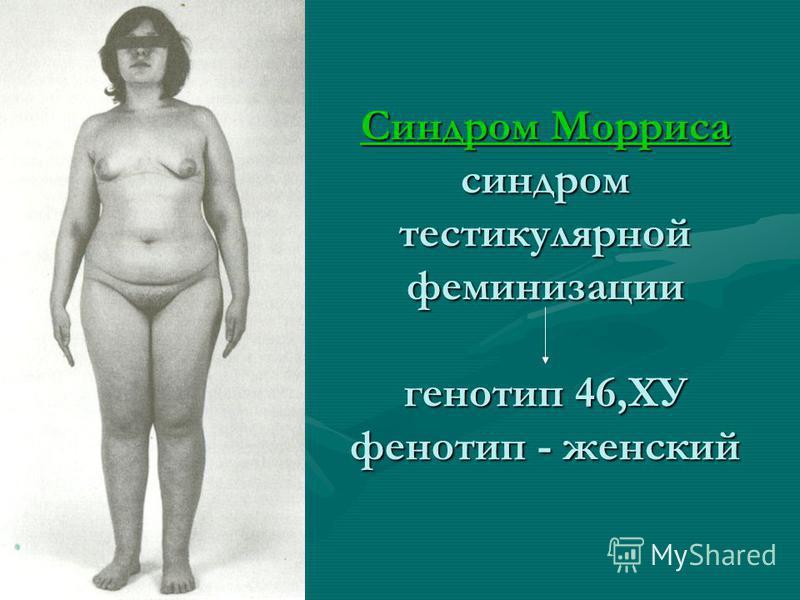 Синдром Морриса синдром тестикулярной феминизации генотип 46,ХУ фенотип - женский