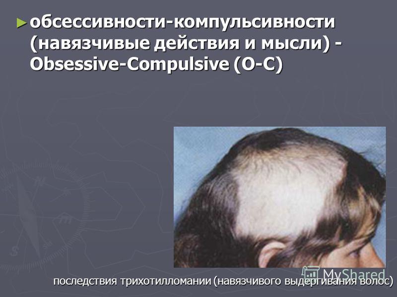 обсессивности-компульсивности (навязчивые действия и мысли) - Obsessive-Compulsive (O-C) обсессивности-компульсивности (навязчивые действия и мысли) - Obsessive-Compulsive (O-C) последствия трихотилломании (навязчивого выдергивания волос)