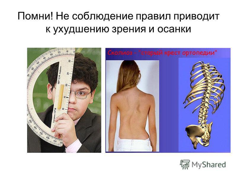 Помни! Не соблюдение правил приводит к ухудшению зрения и осанки