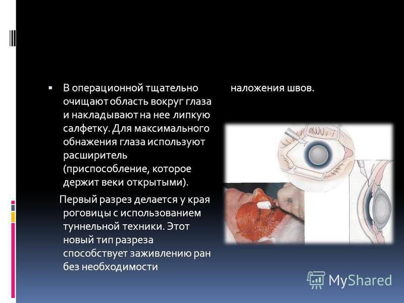 В операционной тщательно очищают область вокруг глаза и накладывают на нее липкую салфетку. Для максимального обнажения глаза используют расширитель (приспособление, которое держит веки открытыми). Первый разрез делается у края роговицы с использован