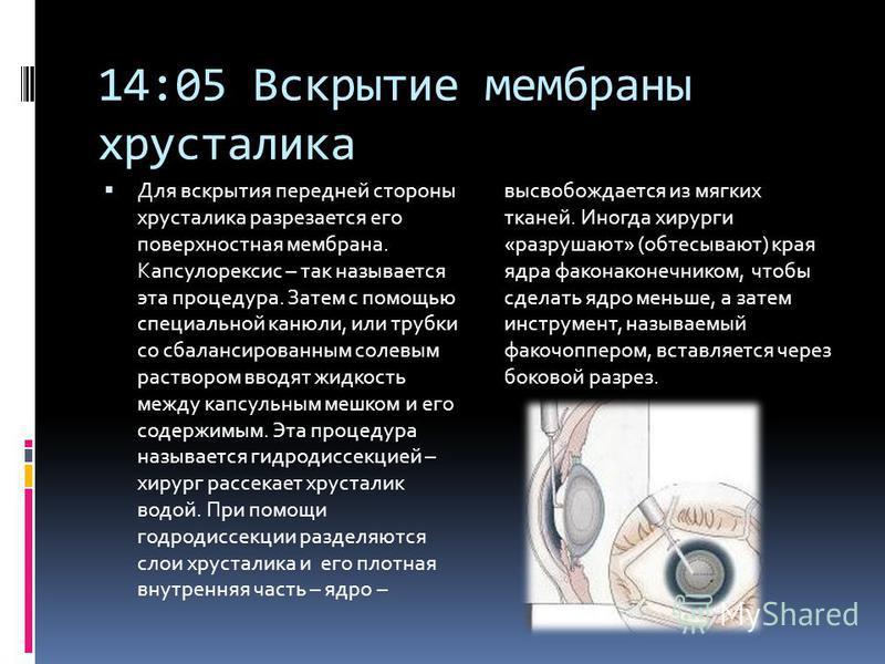14:05 Вскрытие мембраны хрусталика Для вскрытия передней стороны хрусталика разрезается его поверхностная мембрана. Капсулорексис – так называется эта процедура. Затем с помощью специальной канюли, или трубки со сбалансированным солевым раствором вво