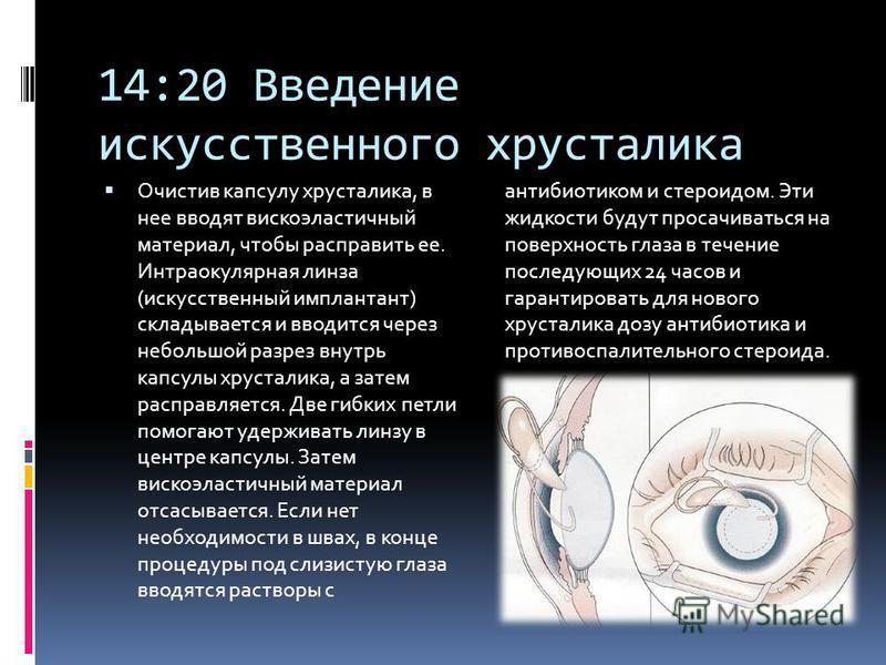 14:20 Введение искусственного хрусталика Очистив капсулу хрусталика, в нее вводят высокоэластичный материал, чтобы расправить ее. Интраокулярная линза (искусственный имплантант) складывается и вводится через небольшой разрез внутрь капсулы хрусталика