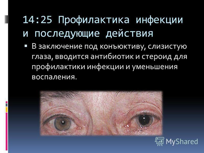 14:25 Профилактика инфекции и последующие действия В заключение под конъюнктиву, слизистую глаза, вводится антибиотик и стероид для профилактики инфекции и уменьшения воспаления.