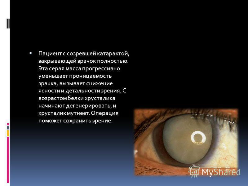 Пациент с созревшей катарактой, закрывающей зрачок полностью. Эта серая масса прогрессивно уменьшает проницаемость зрачка, вызывает снижение ясности и детальности зрения. С возрастом белки хрусталика начинают дегенерировать, и хрусталик мутнеет. Опер