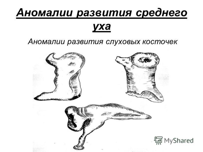 Аномалии развития среднего уха Аномалии развития слуховых косточек