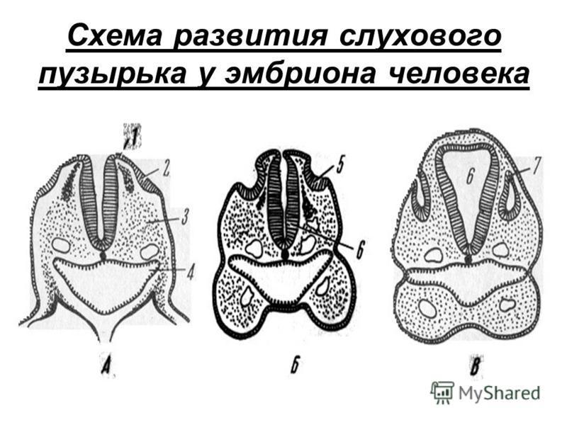 Схема развития слухового пузырька у эмбриона человека