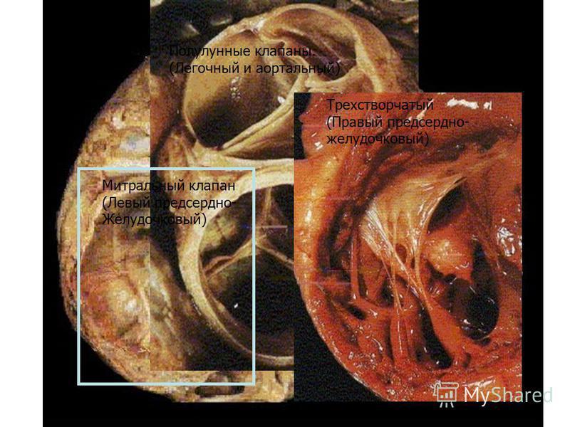 Полулунные клапаны. (Легочный и аортальный) Митральный клапан (Левый предсердно- Желудочковый) Трехстворчатый (Правый предсердно- желудочковый)