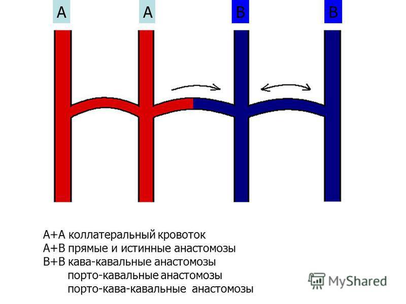 ААВВ А+А коллатеральный кровоток А+В прямые и истинные анастомозы В+В кава-кавальные анастомозы порто-кавальные анастомозы порто-кава-кавальные анастомозы