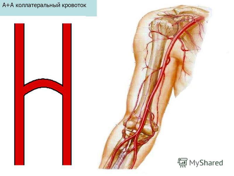 А+А коллатеральный кровоток