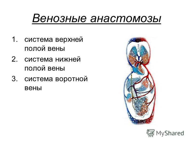 Венозные анастомозы 1. система верхней полой вены 2. система нижней полой вены 3. система воротной вены