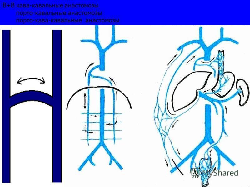 В+В кава-кавальные анастомозы порто-кавальные анастомозы порто-кава-кавальные анастомозы