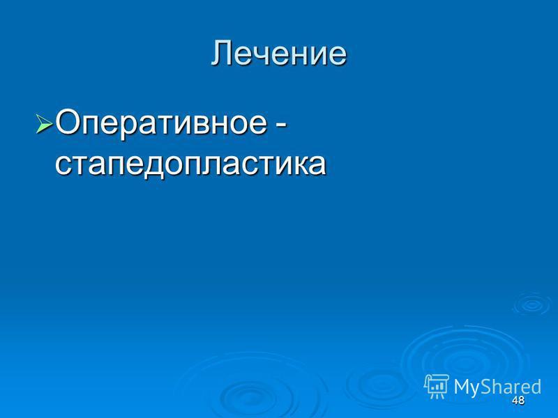 48 Лечение Оперативное - стапедопластика Оперативное - стапедопластика