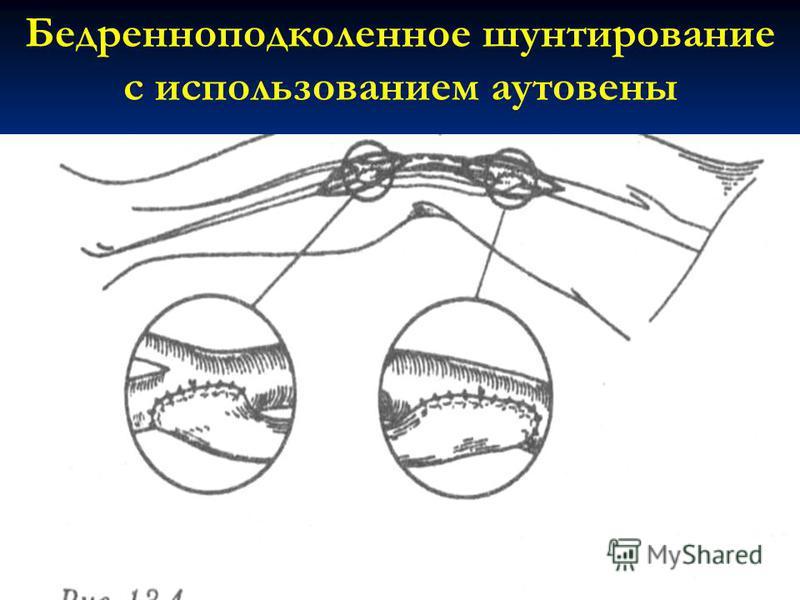 Бедренноподколенное шунтирование с использованием ауто вены