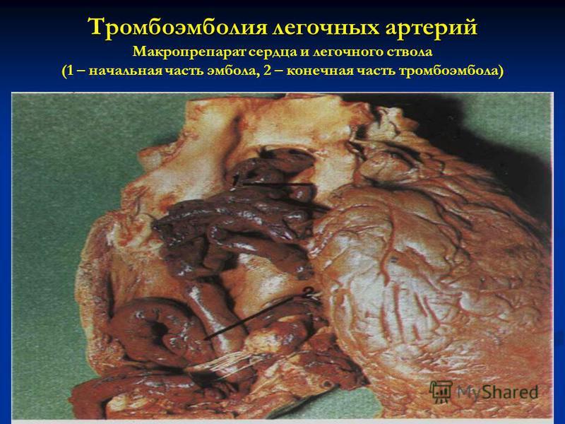 Тромбоэмболия легочных артерий Тромбоэмболия легочных артерий Макропрепарат сердца и легочного ствола (1 – начальная часть эмбола, 2 – конечная часть тромбоэмбола)