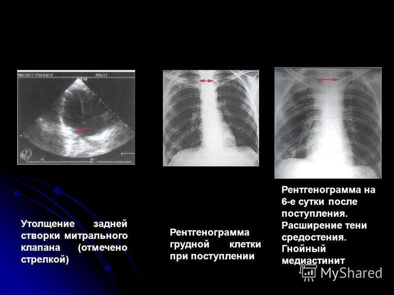 Утолщение задней створки митрального клапана (отмечено стрелкой) Рентгенограмма грудной клетки при поступлении Рентгенограмма на 6-е сутки после поступления. Расширение тени средостения. Гнойный медиастинит