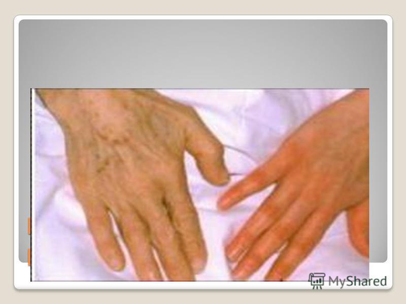 Рука больного анемией и рука здорового человека