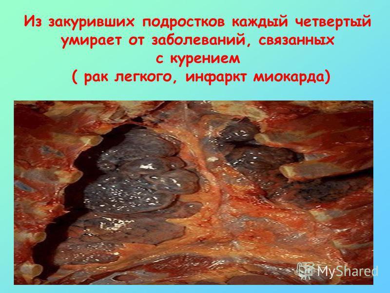 Из закуривших подростков каждый четвертый умирает от заболеваний, связанных с курением ( рак легкого, инфаркт миокарда)