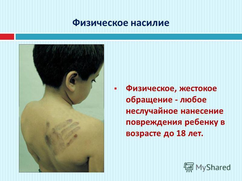 Физическое насилие Физическое, жестокое обращение - любое неслучайное нанесение повреждения ребенку в возрасте до 18 лет.