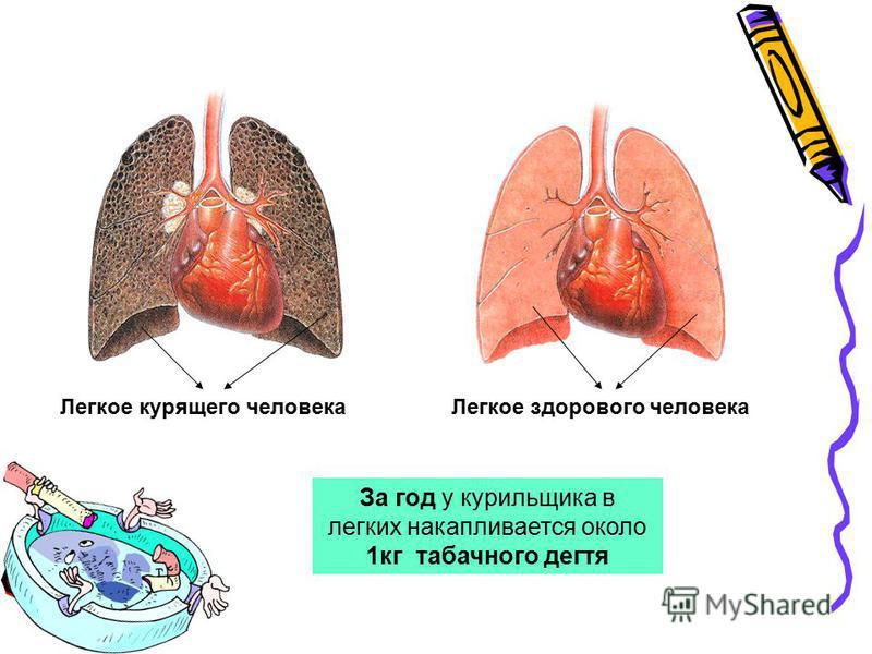 Легкое курящего человека Легкое здорового человека За год у курильщика в легких накапливается около 1 кг табачного дегтя