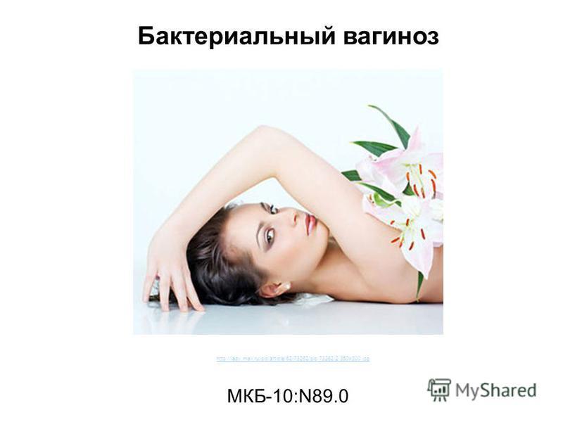 Бактериальный вагиноз МКБ-10:N89.0 http://lady.mail.ru/pic/article/62/73262/pic.73262.2.350x300.jpg