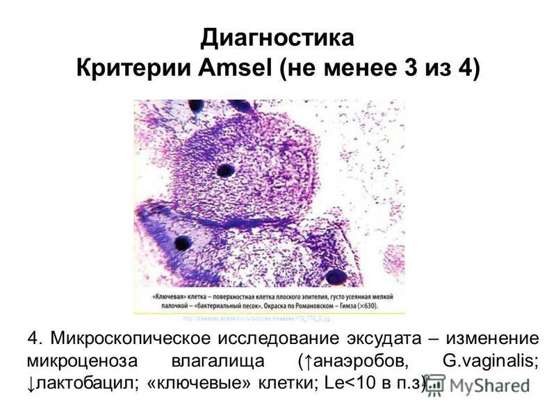 4. Микроскопическое исследование эксудата – изменение микробиоценоза влагалища (анаэробов, G.vaginalis; лактобацилл; «ключевые» клетки; Le<10 в п.з) http://diseases.academic.ru/pictures/diseases/178_178_2. jpg Диагностика Критерии Amsel (не менее 3 и