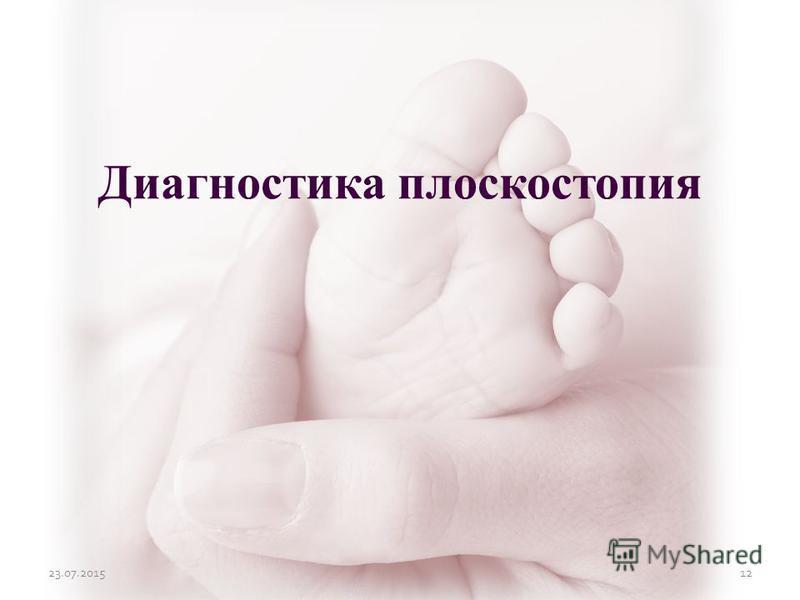 23.07.201512 Диагностика плоскостопия