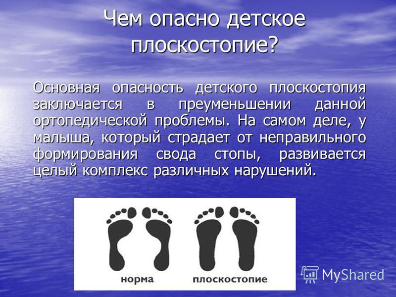 Чем опасно детское плоскостопие? Чем опасно детское плоскостопие? Основная опасность детского плоскостопия заключается в преуменьшении данной ортопедической проблемы. На самом деле, у малыша, который страдает от неправильного формирования свода стопы