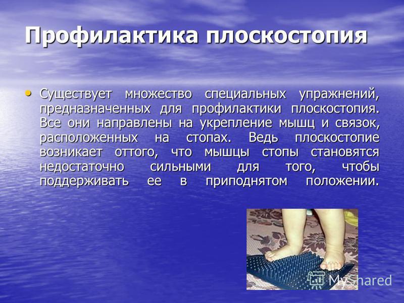 Профилактика плоскостопия Существует множество специальных упражнений, предназначенных для профилактики плоскостопия. Все они направлены на укрепление мышц и связок, расположенных на стопах. Ведь плоскостопие возникает оттого, что мышцы стопы становя