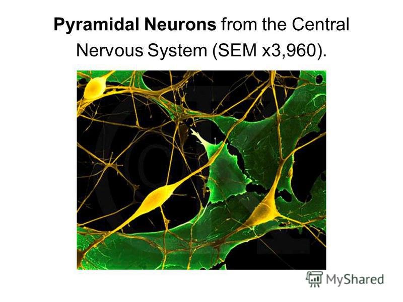 Pyramidal Neurons from the Central Nervous System (SEM x3,960).