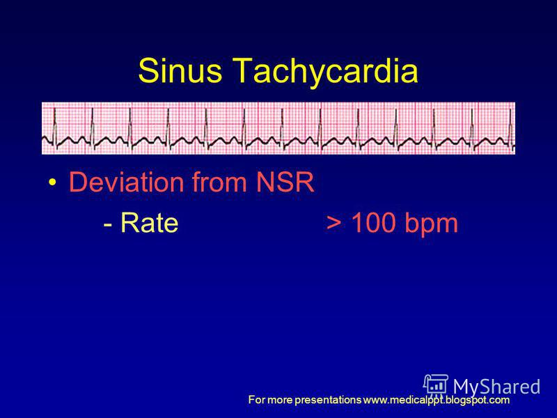 For more presentations www.medicalppt.blogspot.com Sinus Tachycardia Deviation from NSR - Rate> 100 bpm