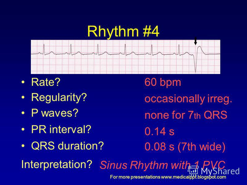 For more presentations www.medicalppt.blogspot.com Rhythm #4 60 bpm Rate? Regularity? occasionally irreg. none for 7 th QRS 0.08 s (7th wide) P waves? PR interval? 0.14 s QRS duration? Interpretation? Sinus Rhythm with 1 PVC