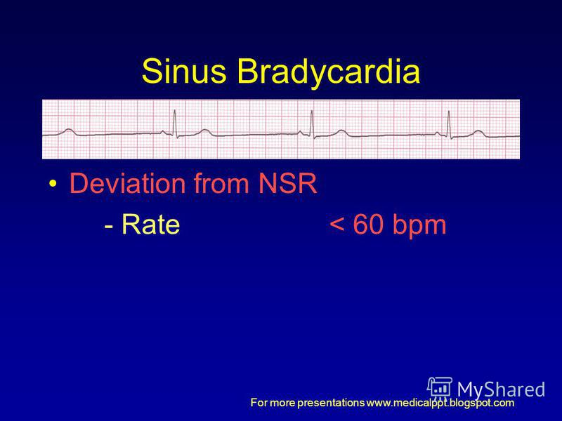 For more presentations www.medicalppt.blogspot.com Sinus Bradycardia Deviation from NSR - Rate< 60 bpm
