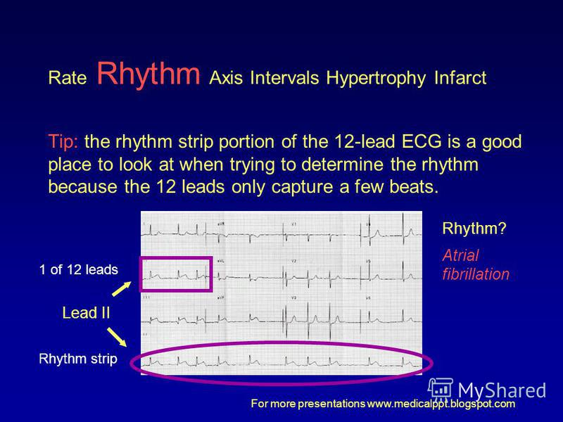 For more presentations www.medicalppt.blogspot.com Rate Rhythm Axis Intervals Hypertrophy Infarct Tip: the rhythm strip portion of the 12-lead ECG is a good place to look at when trying to determine the rhythm because the 12 leads only capture a few