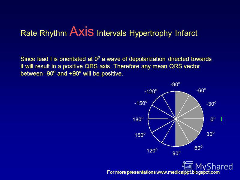 For more presentations www.medicalppt.blogspot.com 0o0o 30 o -30 o 60 o -60 o -90 o -120 o 90 o 120 o 150 o 180 o -150 o Rate Rhythm Axis Intervals Hypertrophy Infarct Since lead I is orientated at 0 o a wave of depolarization directed towards it wil