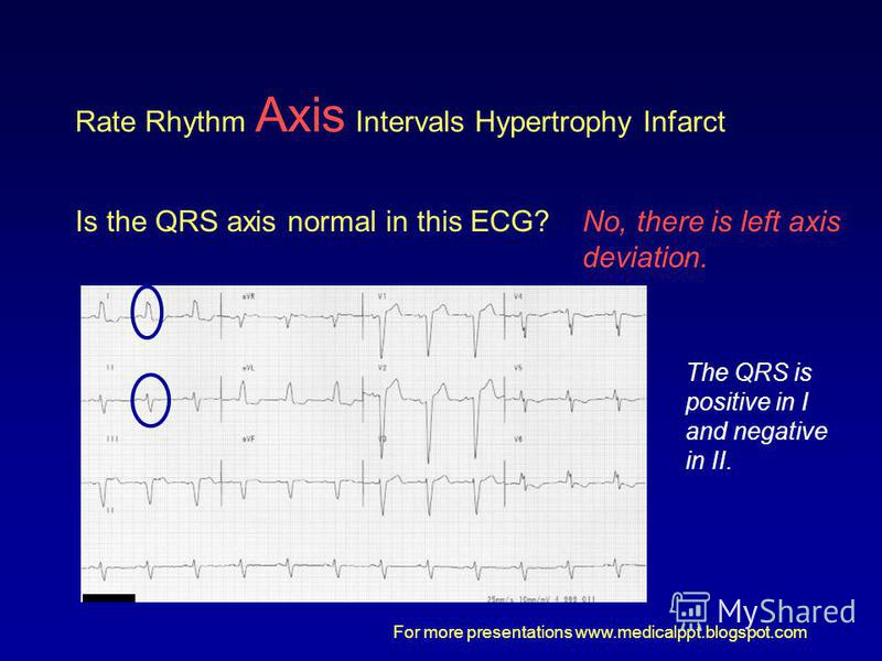 For more presentations www.medicalppt.blogspot.com Rate Rhythm Axis Intervals Hypertrophy Infarct Is the QRS axis normal in this ECG?No, there is left axis deviation. The QRS is positive in I and negative in II.