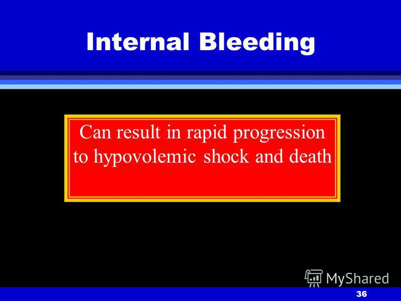 36 Internal Bleeding Can result in rapid progression to hypovolemic shock and death