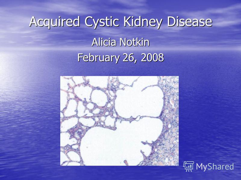 Acquired Cystic Kidney Disease Alicia Notkin February 26, 2008