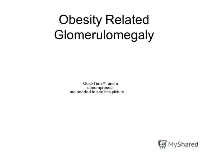 Obesity Related Glomerulomegaly