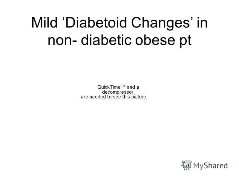 Mild Diabetoid Changes in non- diabetic obese pt